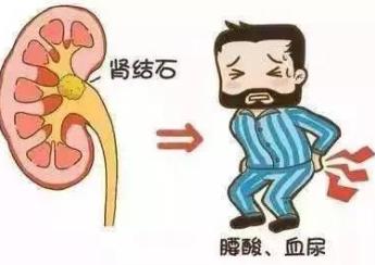 X线腹部平片上的肾结石