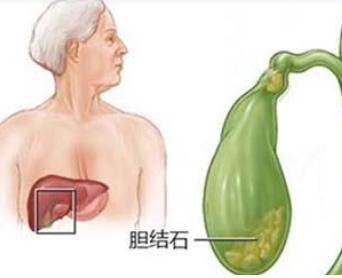 胆结石常用药有哪些?