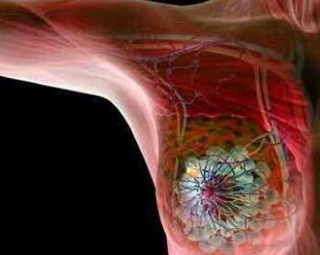 乳腺癌新靶向药帕妥珠单抗又一适应症在中国获批