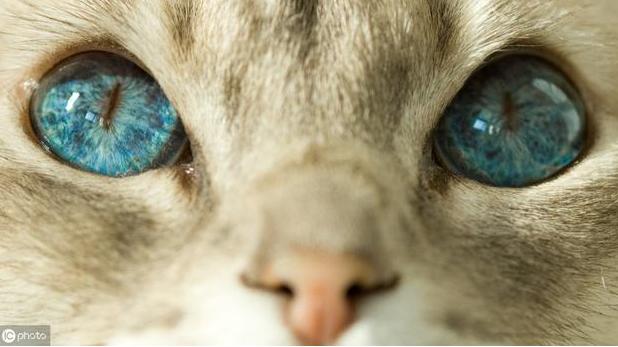 眼底黄斑是病吗?科普:黄斑不是病,黄斑生病才是病
