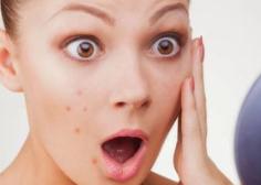 脸上长痤疮的原因是什么