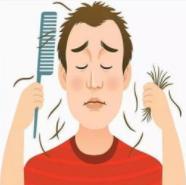 怎样治疗斑秃