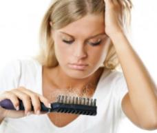 斑秃怎样治疗?