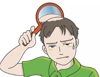 脱发怎么办怎么治疗