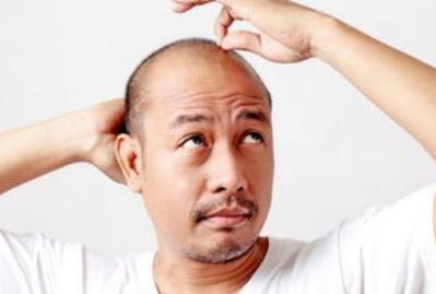 熬夜脱发怎么办?造成脱发6个原因,推荐4个防脱发方法,建议收藏