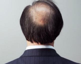 斑秃怎样治?