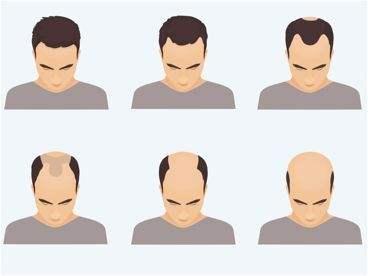 斑秃应该怎样治