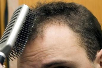 """什么是肾虚型脱发?应该怎么治?3个高效法来""""助力"""""""