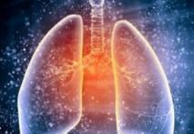 中国首个PD-L1,度伐利尤单抗获批,III期肺癌临床治愈的福音