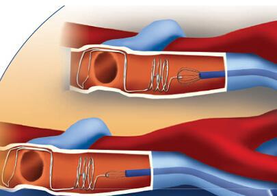 深静脉血栓形成的原因有哪些,与这几大因素有关