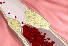 治疗静脉炎最好方法,如何治疗更有效