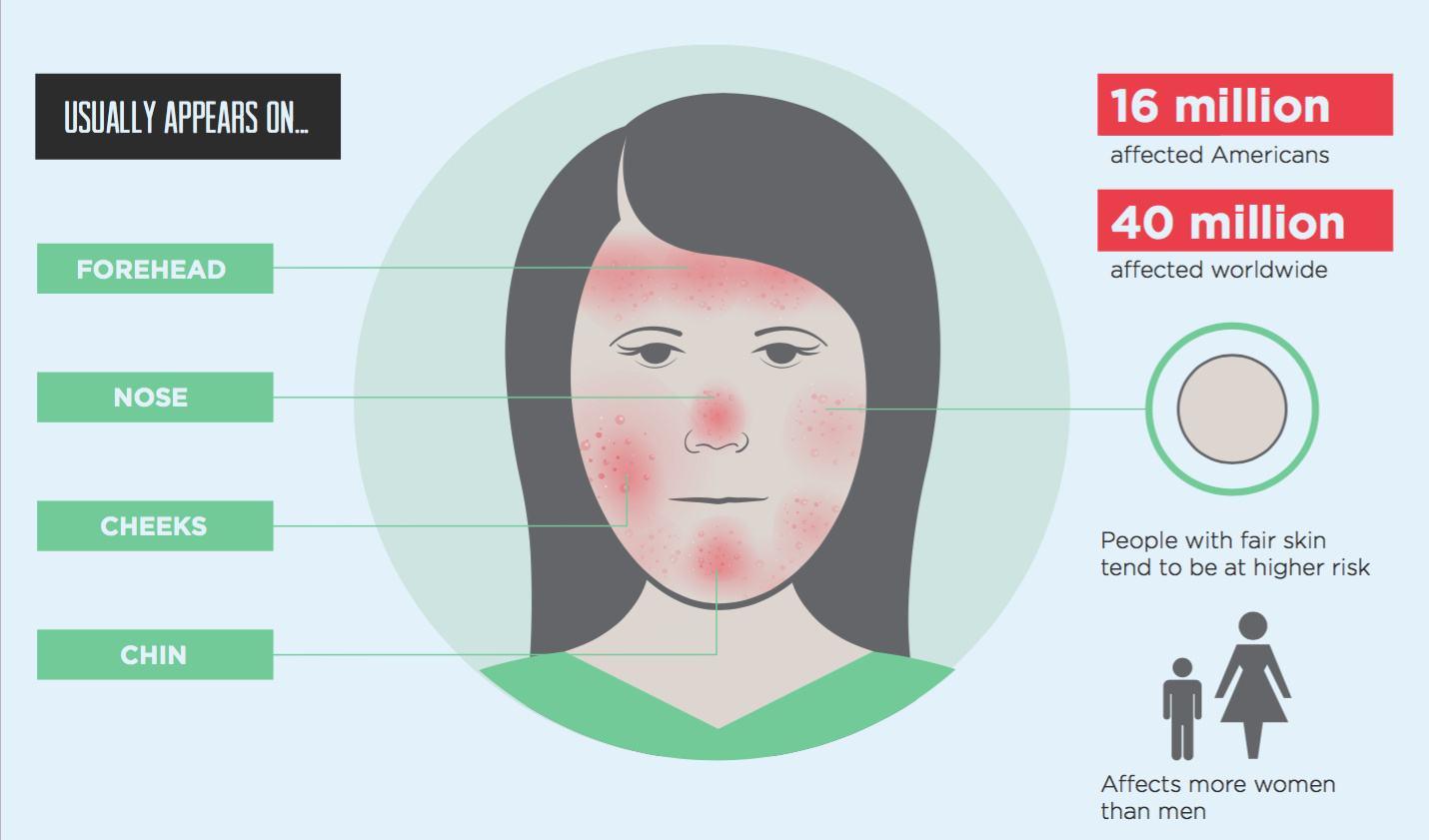脸部痤疮治疗办法