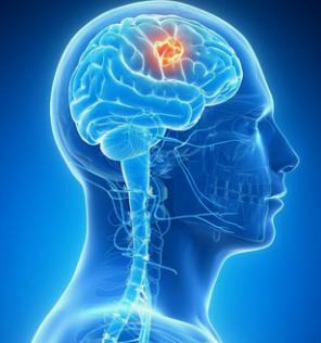怎样预防癫痫突然发作, 长备哪些常用药物?