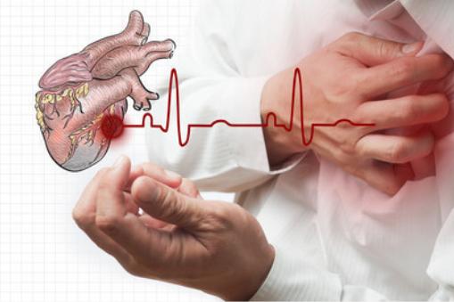 心肌缺血如何治