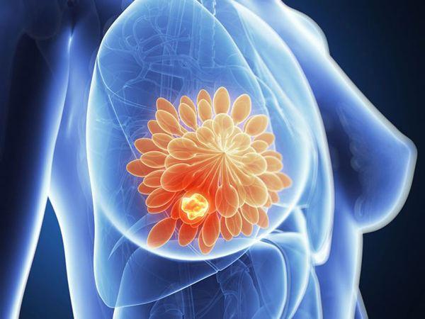 乳腺增生是什么情况?了解了才能对症下药