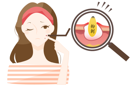 粉刺和痘痘有什么区别