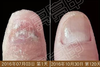灰指甲是什么原因引起的?这些你可要远离,小心