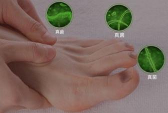 亮甲治疗灰指甲要多少钱一盒?效果是主要的