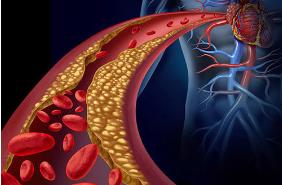 心脏病是怎么引起的?