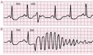 早搏是心脏病吗?