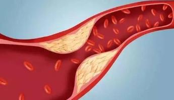 心脏病是怎样形成的