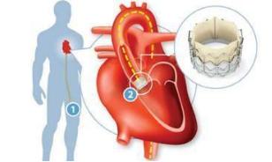 心脏病怎么治疗好