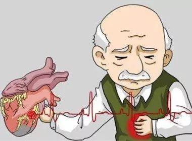 心梗怎么治疗