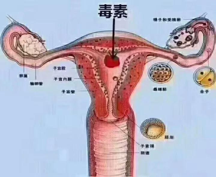 滴虫性阴道炎和霉菌性有什么区别?听听专家说的,早知早受益