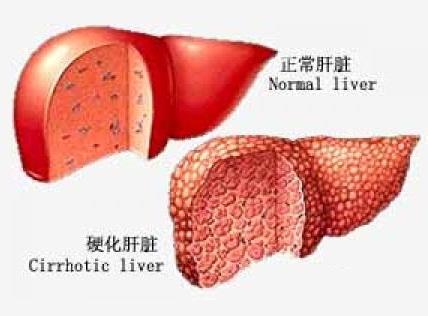 肝硬化早期,身体会有什么症状?早发现、早治疗可预防肝癌