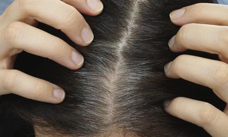 圆心日历丨白头发越拔越多吗?21年8月5日